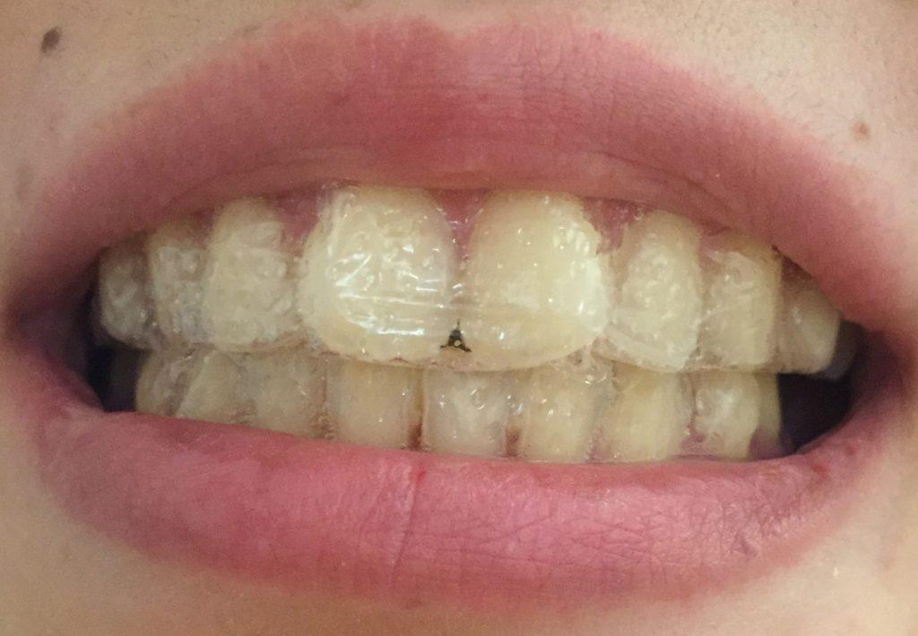 の 歯磨き バナナ 皮 バナナの皮、意外すぎる10の使い道。歯が真っ白になる!?